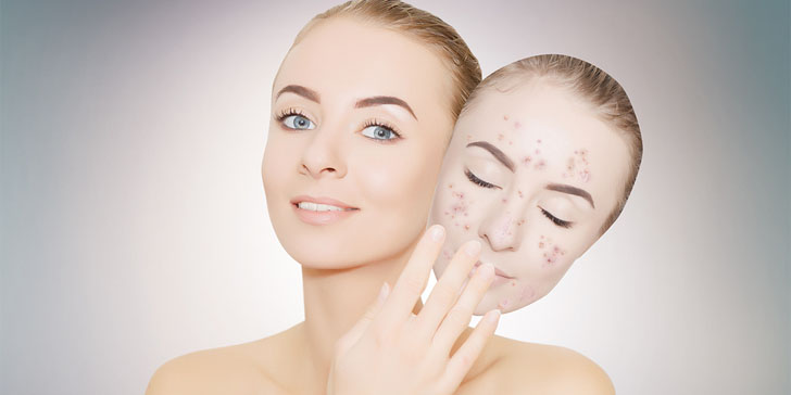 The 25 Best Home Remedies For Acne And Pimples