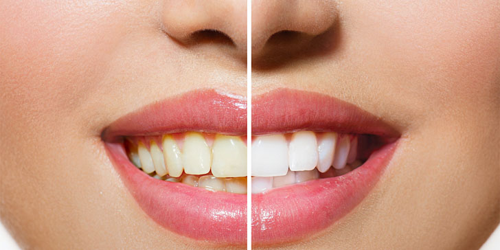 4 Ways To Naturally Whiten Your Teeth At Home